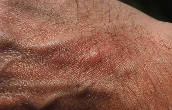 Image d'une main avec un bouton en raison d'une piqûre de moustique